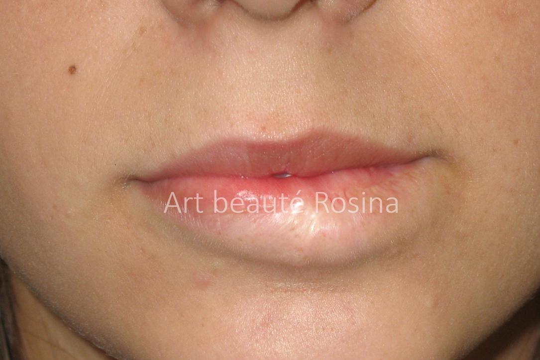 Lèvre inférieure dépigmentée à la suite de l'ablation d'un angiome