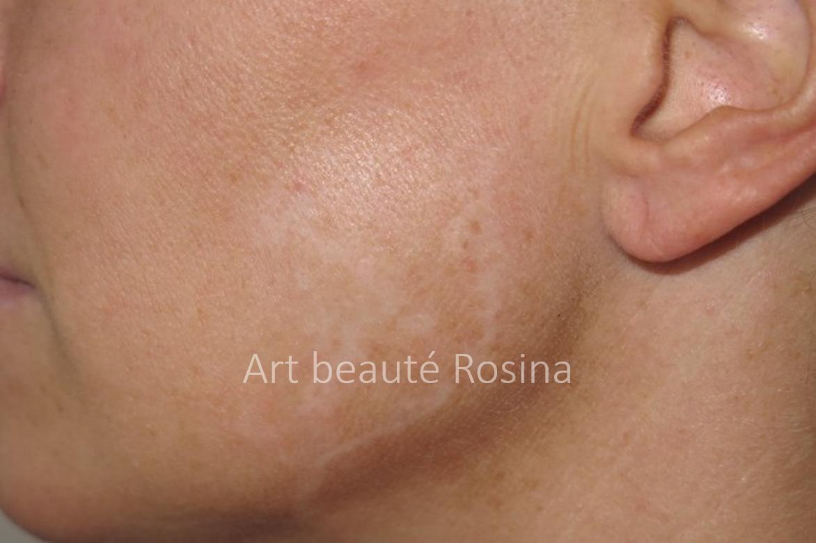 Cicatrice sur une joue