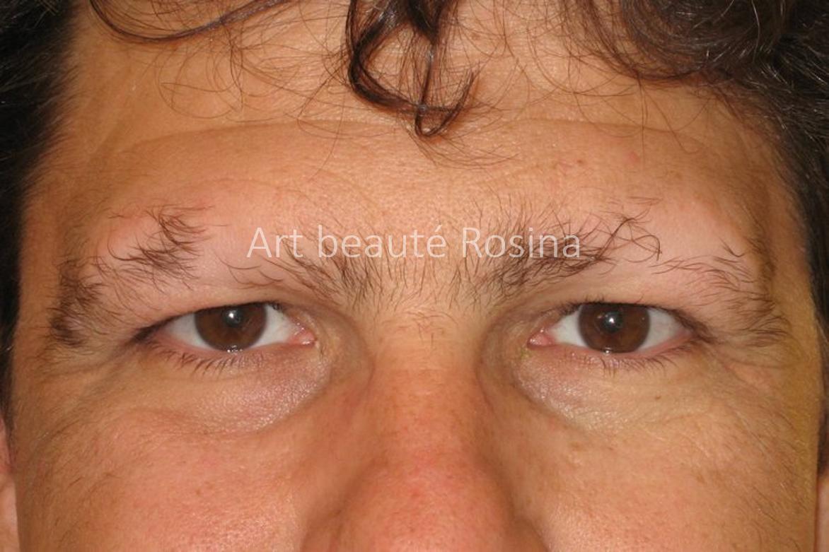 Début de l'alopécie des sourcils et des cheveux chez un homme