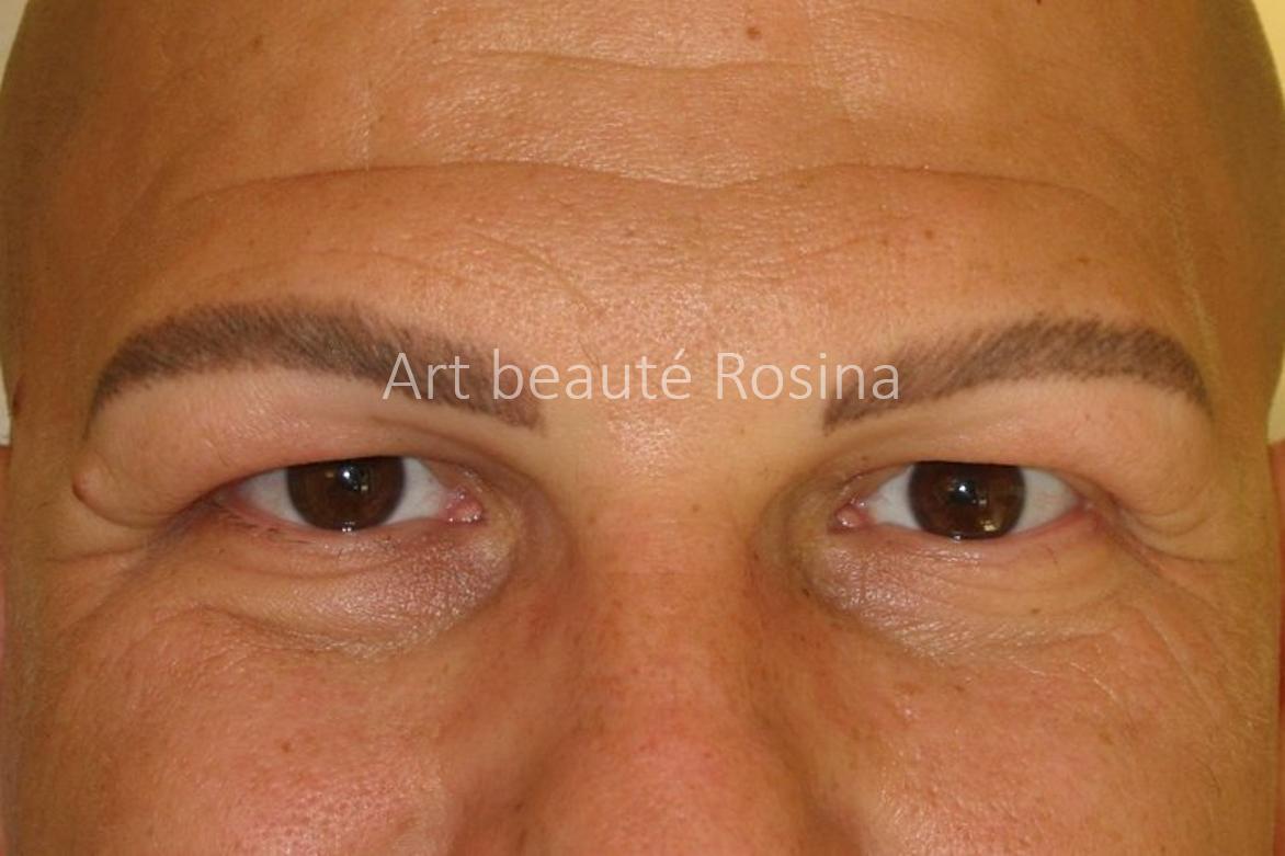 Résultat 4 mois après la pigmentation des sourcils - alopécie devenue universelle à l'ensemble du corps