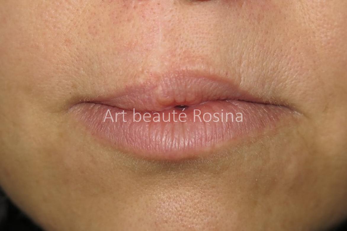Lèvres naturelles avec la cicatrice sur la lèvre du haut