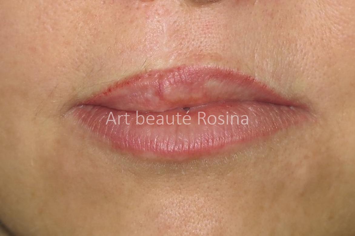 Résultat 1 mois après la pigmentation du contour des lèvres avec un dégradé - petite retouche faite sur la lèvre du haut