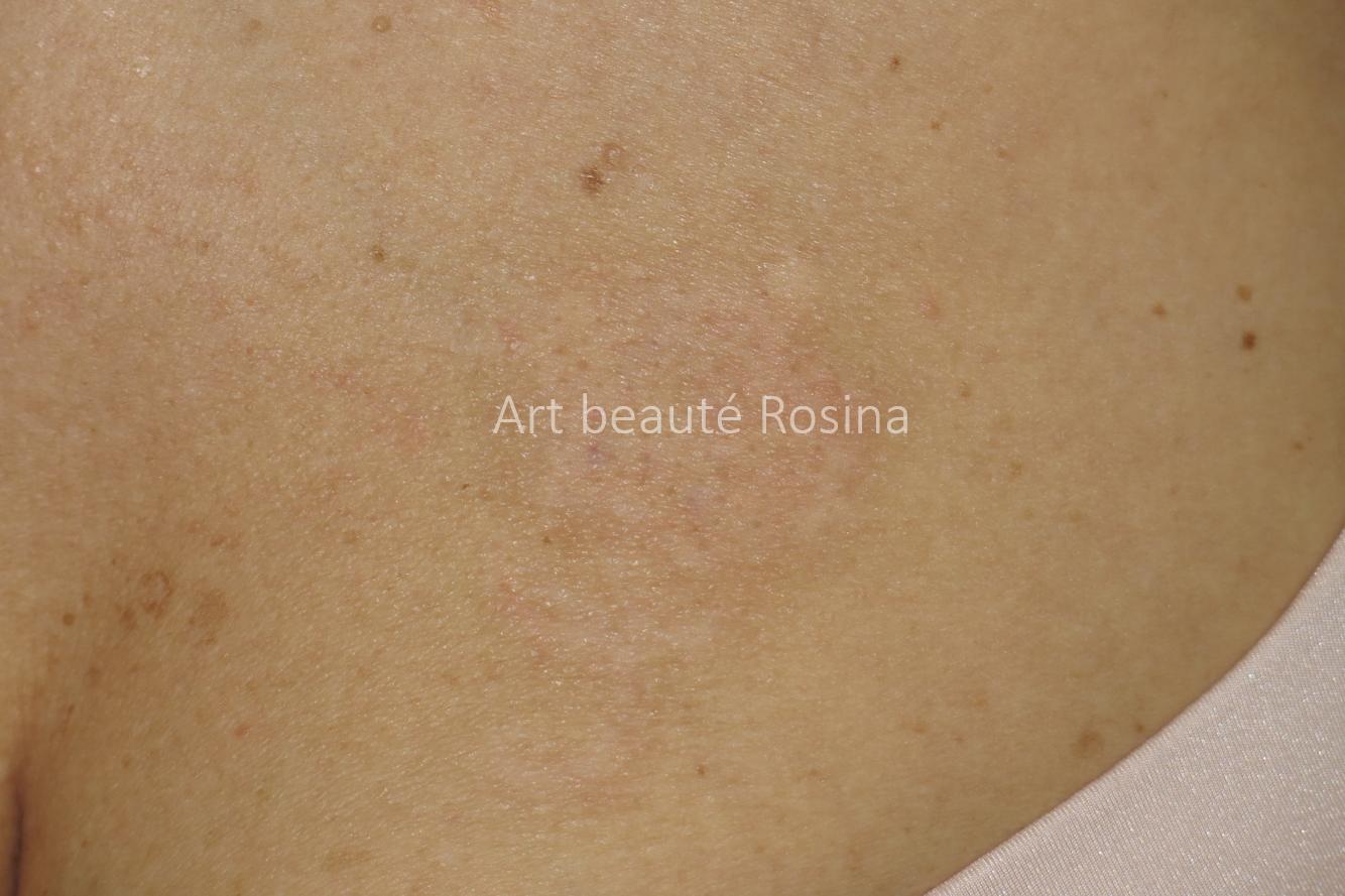 Résultat après 3 séances de pigmentation couleur peau