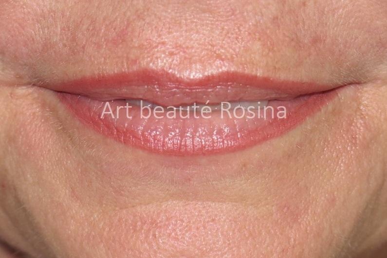 Contour des lèvres pigmentés avec un dégradé