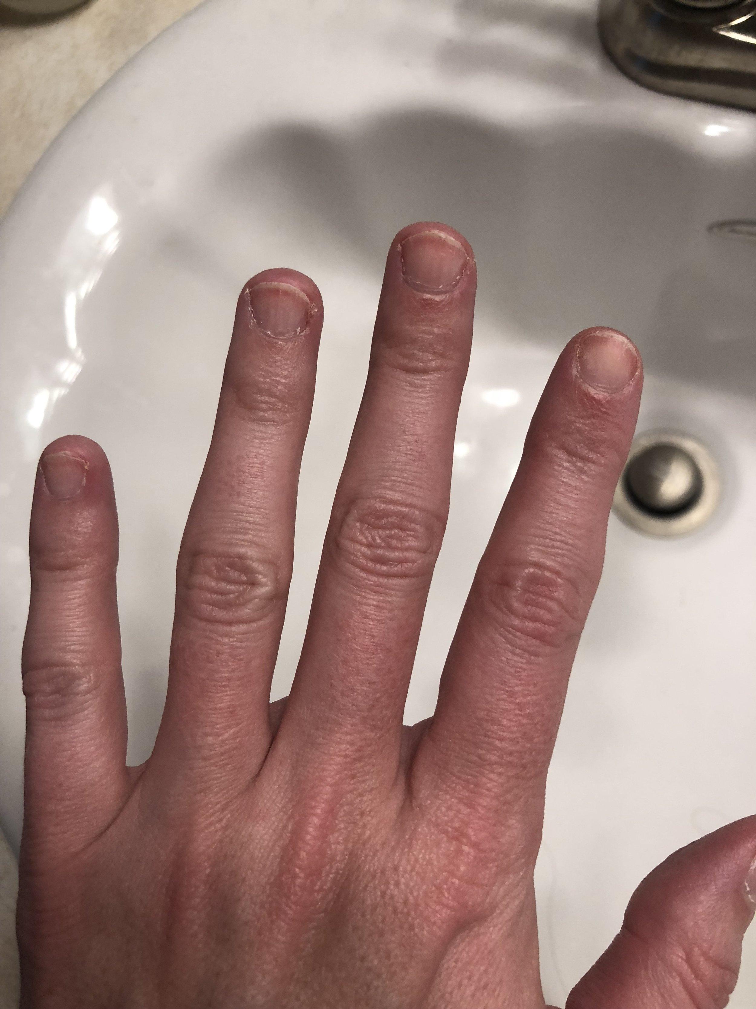 my sad nail situation