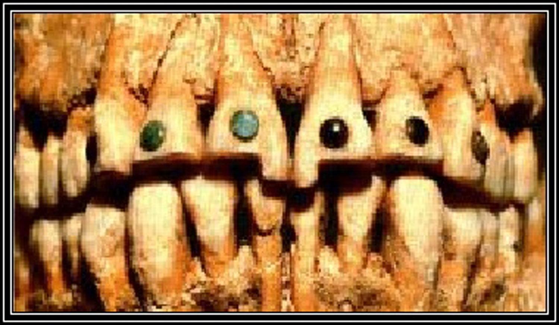 Teeth filled with jade. Source: academia.edu
