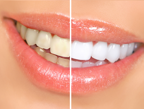 tooth-whitening-Ogx1b7NfElWX01bsWIfywiakHTw.png