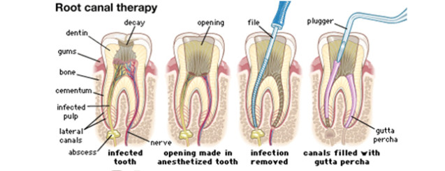 Dental Root Canal