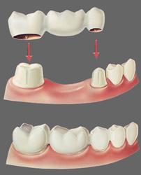 Dental Bridges