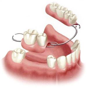 Dentures and Dental Partials