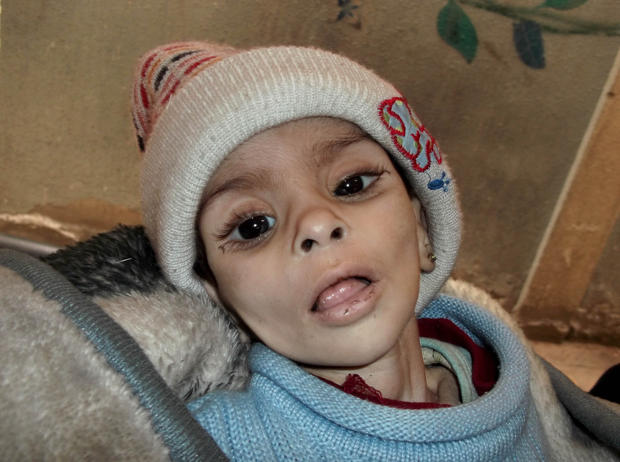 Second atatchment: Israa al-Masri, a young boy who later died of hunger-related illness, on Jan. 11, 2014 in a besieged neighborhood in Damascus.
