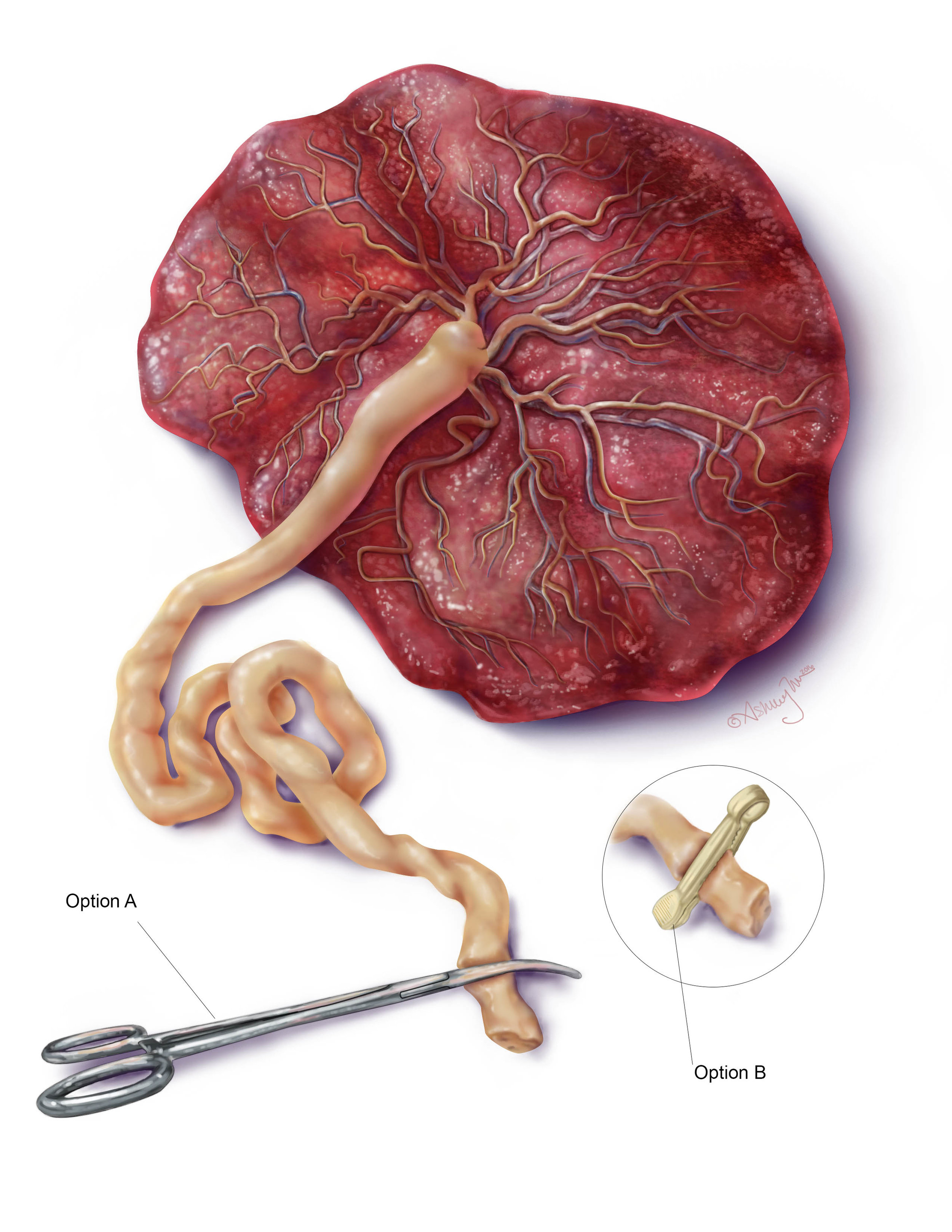 Copy of Placenta
