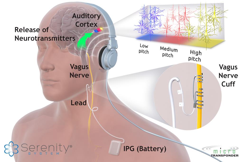 Serenity-System-Tinnitus.jpg