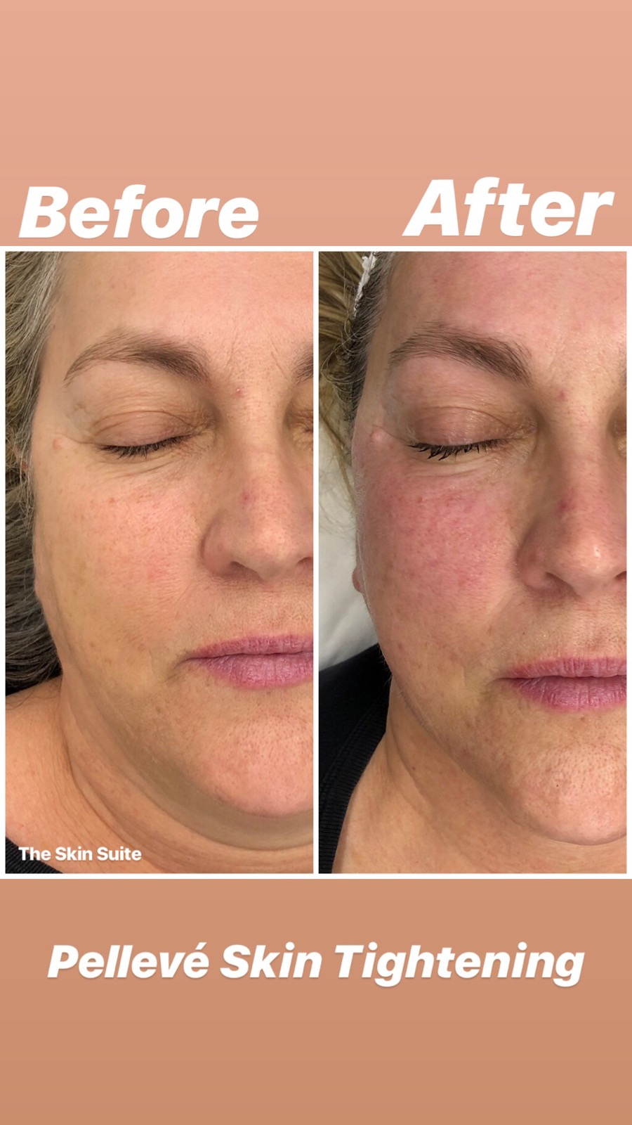 Pelleve treatment before and after The Skin Suite Brisbane Australia.jpg