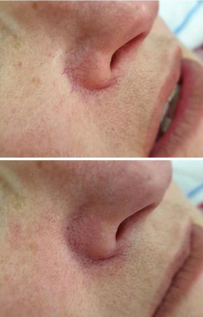 Pelleve vein removal before and after The Skin Suite Brisbane Australia.jpg