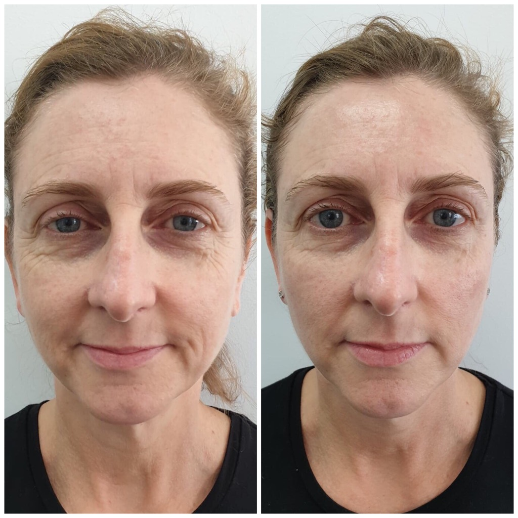Skin treatments before and after The Skin Suite Brisbane Australia.jpg