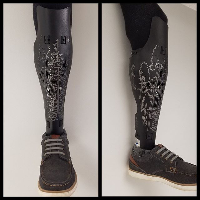 One of our patient's new custom protective cover, created by ALLELES, is looking amazing! #prosthetics #customprostheticcover #alleles