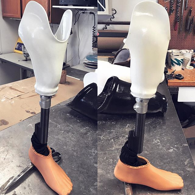 Put on your glasses for this one, it sure is shining bright! ⚪️⚪️⚪️ Sun glasses, shades 👓 PPE are all acceptable.  White finish on a transibial prosthesis - 🌊water leg 😎 #opc #prosthetics #prostheticsandorthotics #prosthesis #prostheticdevice #transtibial #transtibialprosthesis #transtibialprostheses #belowknee #belowkneeprosthesis #transtibialsocket #belowkneesocket #prostheticsocket #prostheticsocketdesign #prosthetist