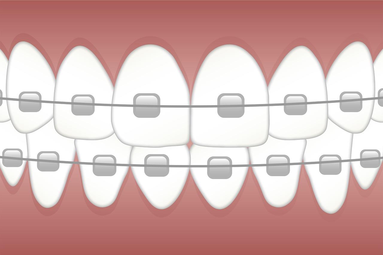 braces-3597591_1280.jpg
