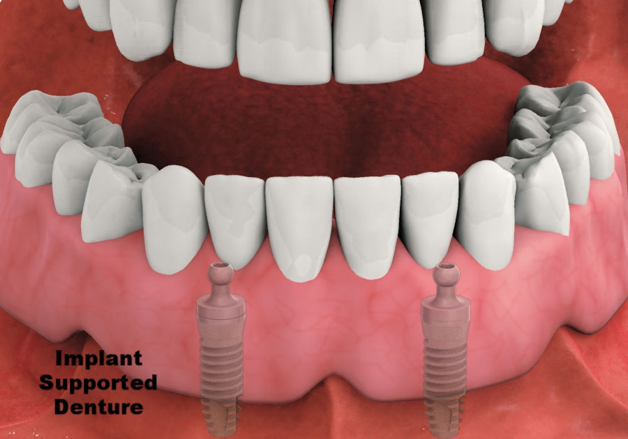 Implant supported denture.jpg