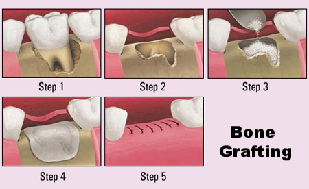 bone grafting.jpg