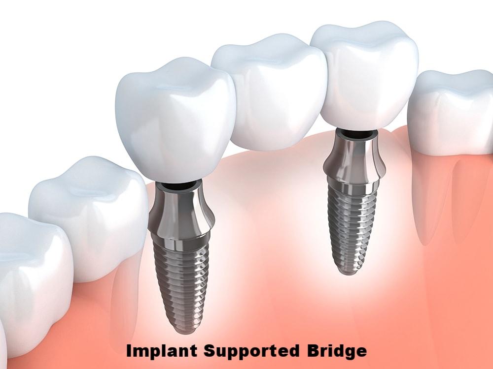 implant bridge.jpg