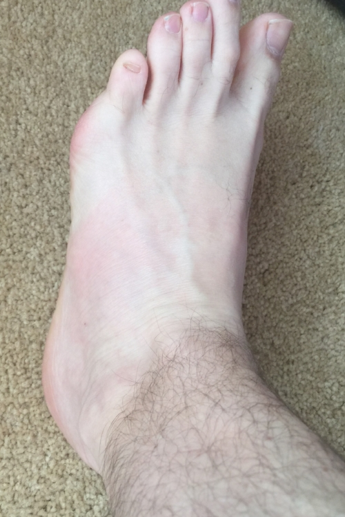 About 24 hours after a high-velocity, low amplitude cuboid manipulation to treat the sprain.