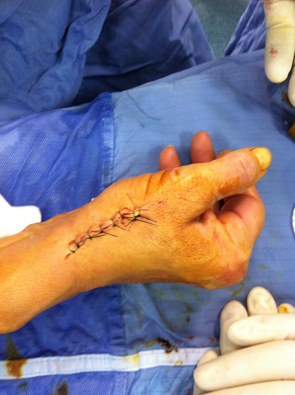 3-dottor-massimo-massarella-medico-chirurgo-specializzato-in-ortopedia-e-traumatologia-di-mano-e-polso-chirurgia-della-mano.jpg