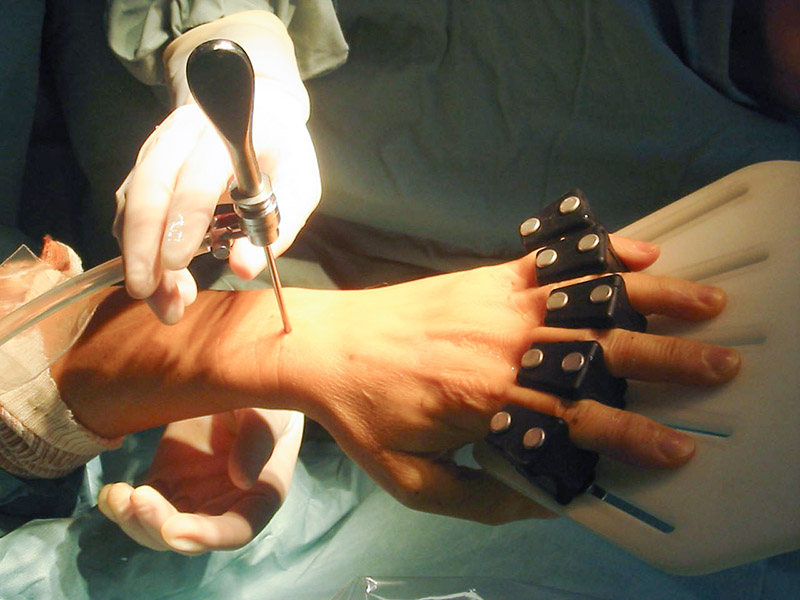 2-dottor-massimo-massarella-medico-chirurgo-specializzato-in-ortopedia-e-traumatologia-di-mano-e-polso-chirurgia-del-polso.jpg