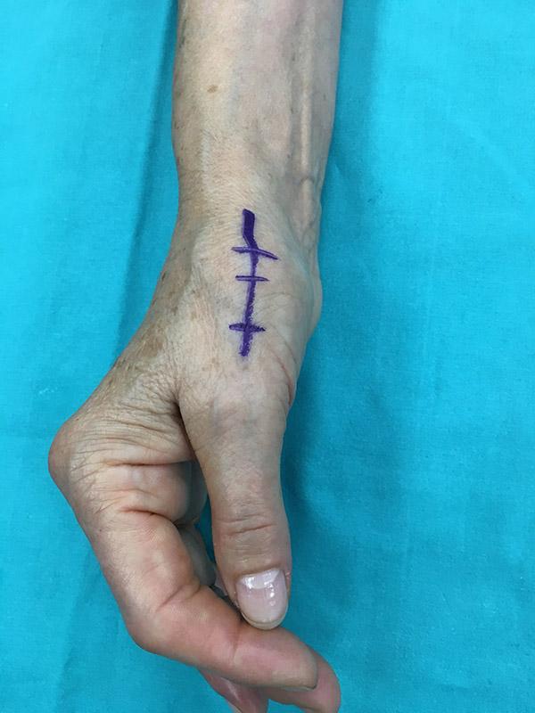 2-dottor-massimo-massarella-patologie-mano-tenosinovite-sindrome-de-quervain.jpg