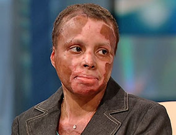 YVETTE CADE (AFTER THE ATTACK)