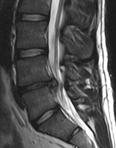 Figure 3. Herniated disc. (Drawing by Edave under Creative Commons Attribution-Share Alike 3.0 Unported)