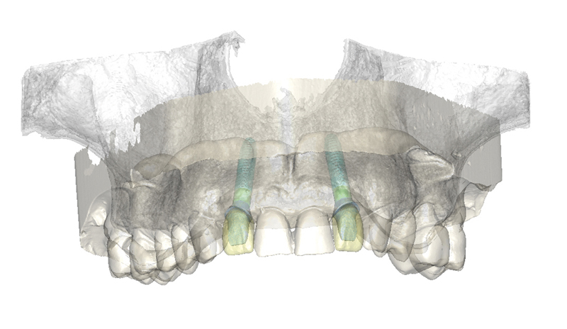 3D implant planning software