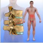 Compression-Fracture-Trauma3-150x150.jpg