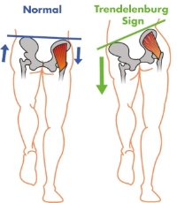 Glute medius weakness leads to hip drop (trendeleburg sign)