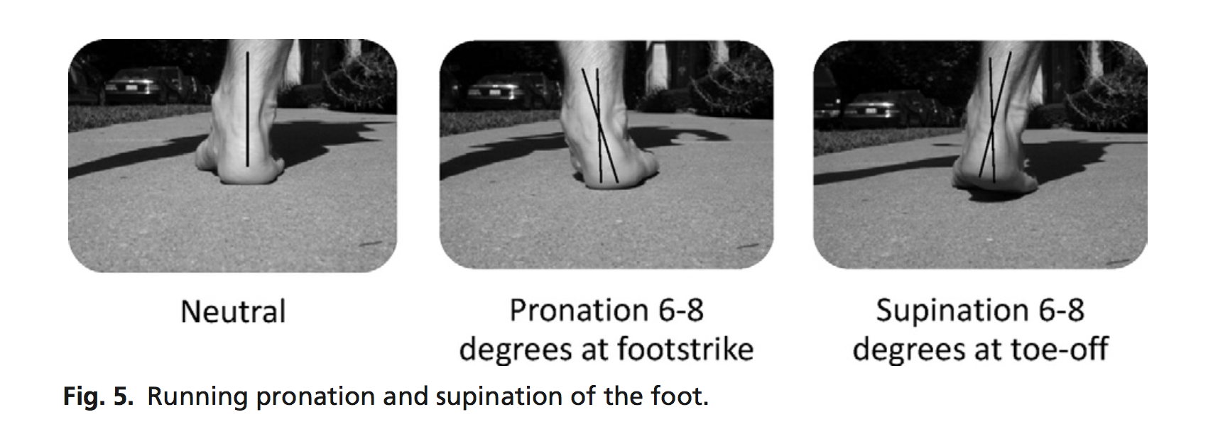 Pronation is NORMAL- however not coming out of pronation, or too much of it is problematic