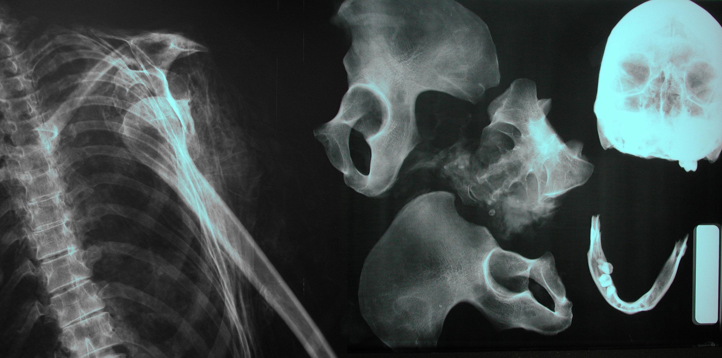 human-remains-analysis.jpg