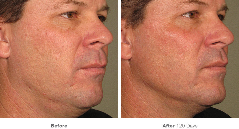 before_after_ultherapy_results_full-face11.jpg