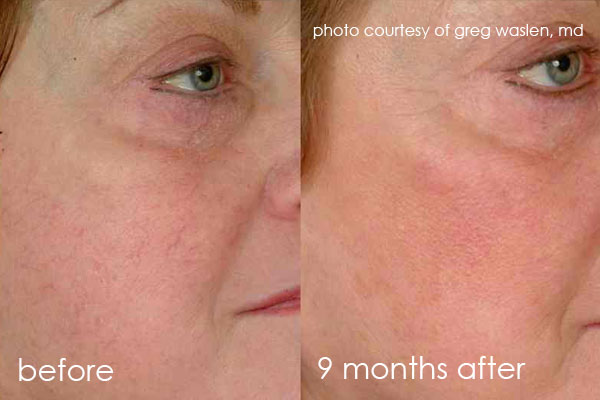 before-and-after-cutera-vein-face2.jpg