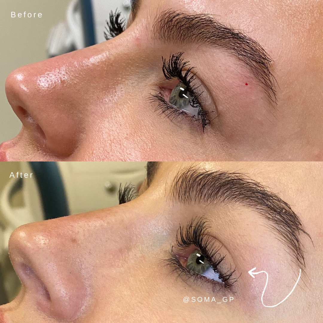37+ Eyebrow Lift Botox Before And After Gif