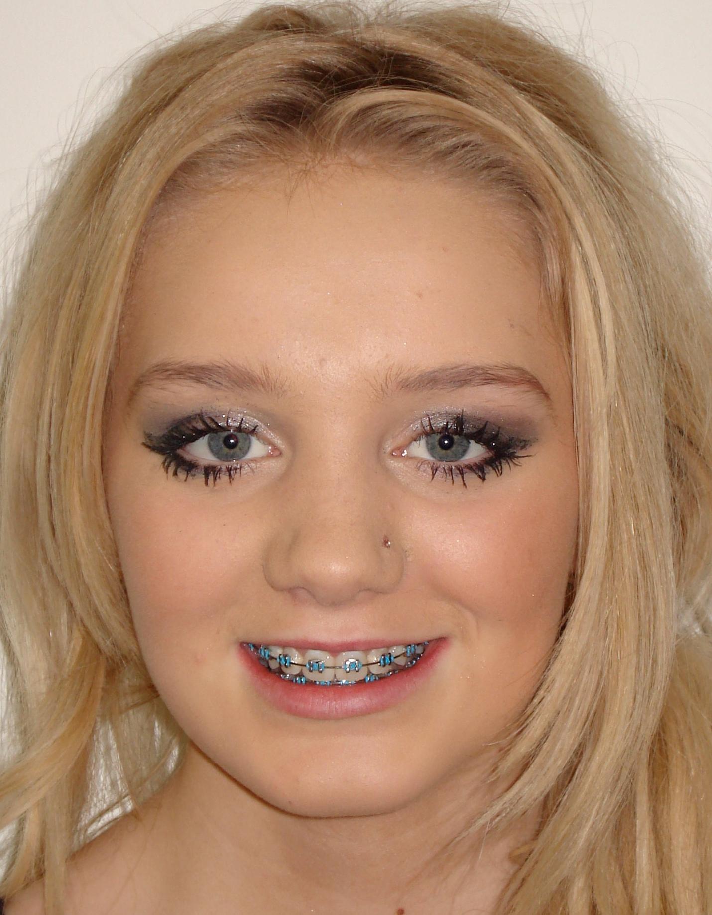 metal braces transformation after