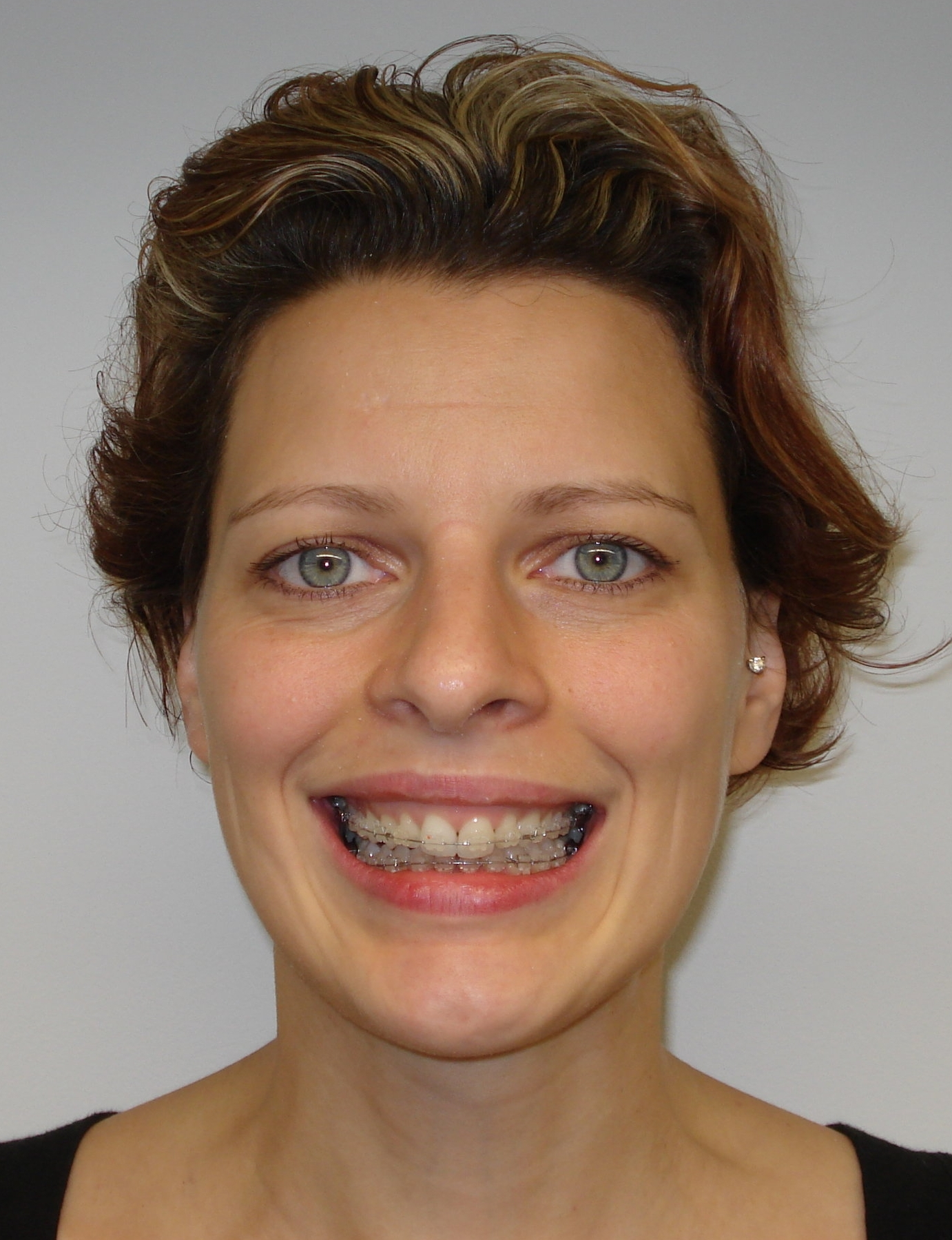 Clear braces after