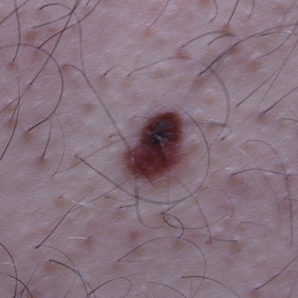 18 YR MALE  This potentially fatal Melanoma was detected through our skin cancer screening