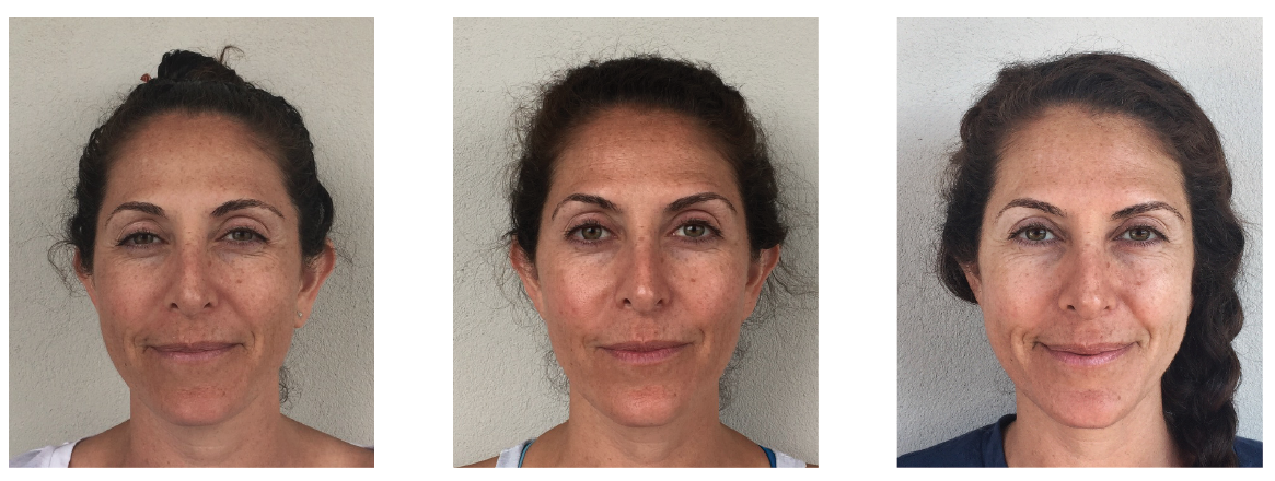 Patients primary concern was skin texture and overall complexion.  The first picture was taken prior to treatment 1, the second picture was taken week 6, and final picture at week 12.