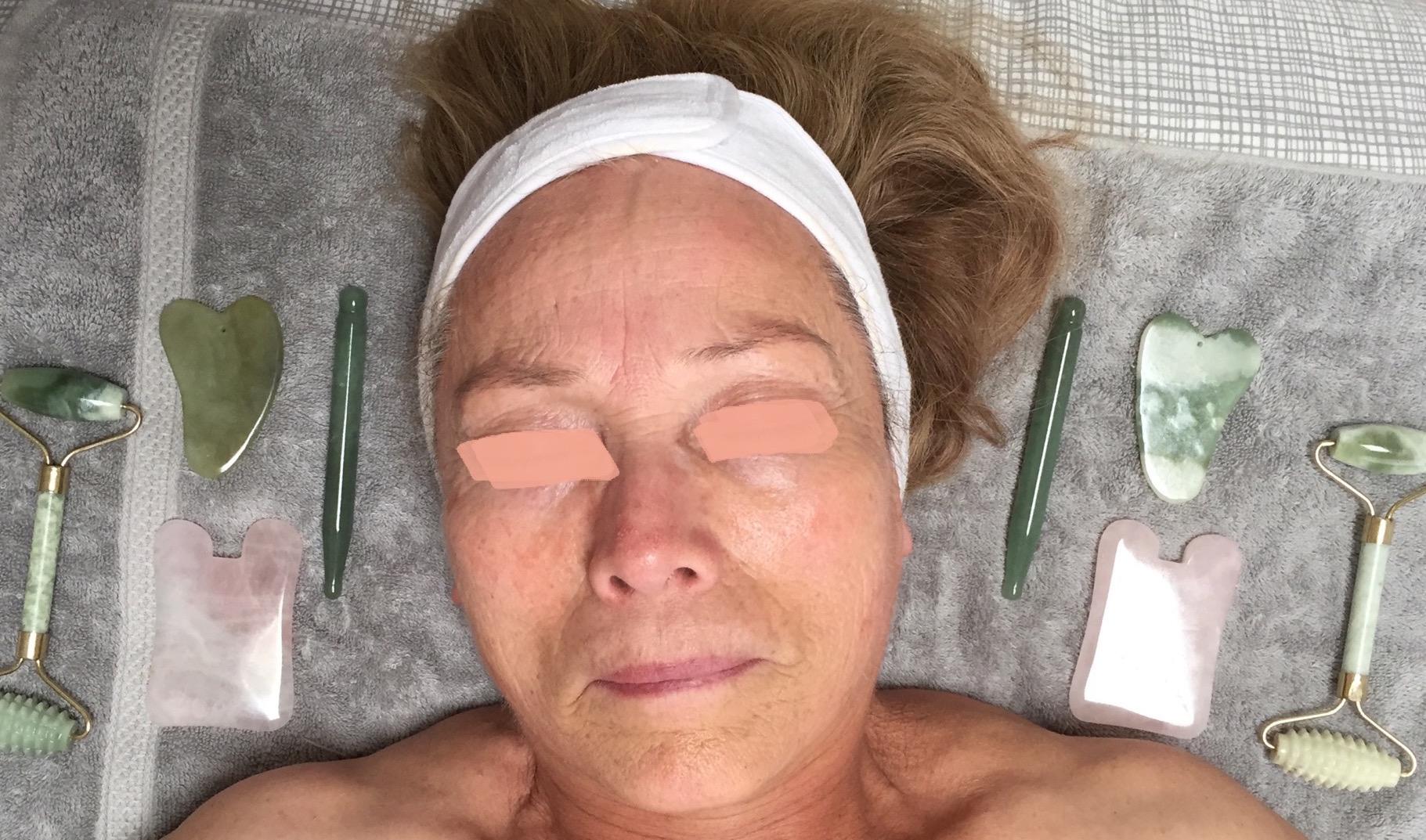 First Gua Sha Treatment