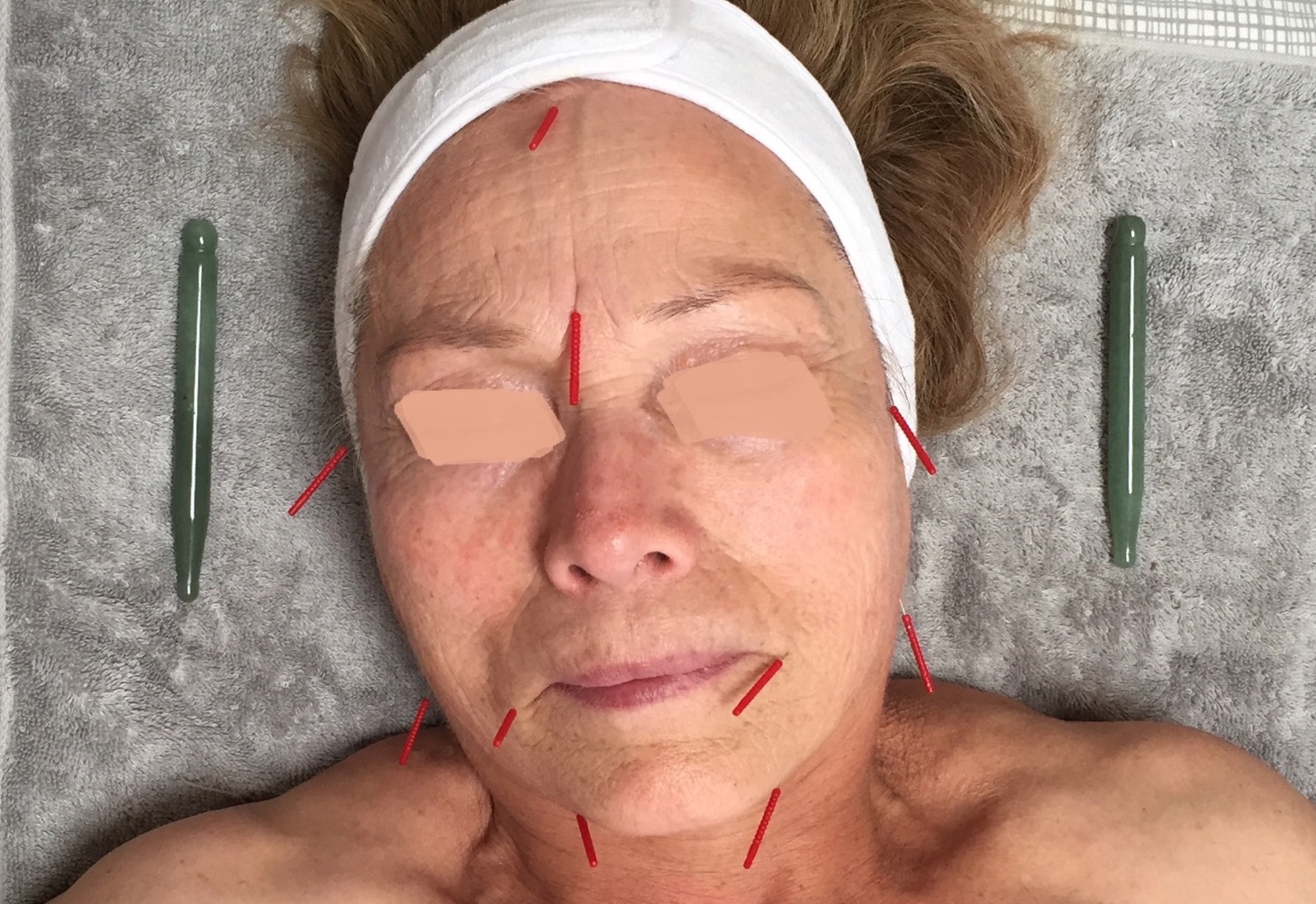 First Cosmetic Acupuncture Treatment