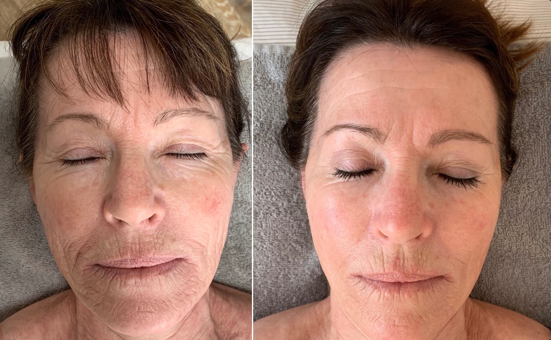 Completed 12 REJUVENATE treatments: body + face acupuncture, LED light therapy, cupping, gua sha, dermalrollling.  Main concern premature aging skin, texture, diminish severity of lines + wrinkles.
