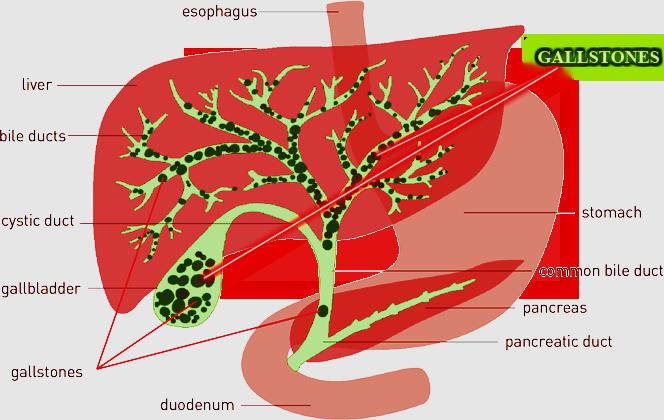 liver-gallstones-gallballder-flush dr. robert selig back to natural health chicago.png