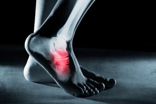 Foot_Heel_Pain