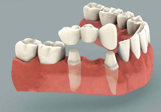 Dental-Bridge-Cost.jpg